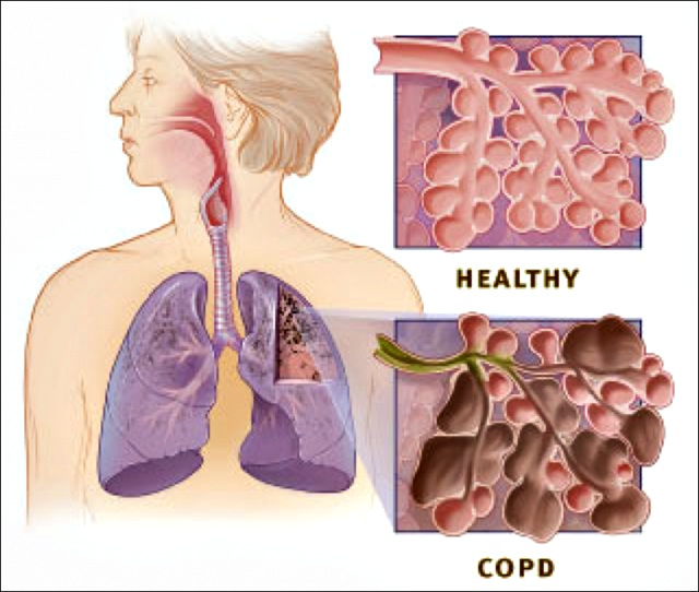 emphysema chronic obstructive pulmonary disease and Chronic obstructive pulmonary disease refers to a collection of chronic lung conditions that limit the airways and cause difficulties with breathing smoking is the most common cause.