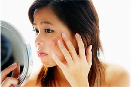 """""""Stubborn Pimples"""""""